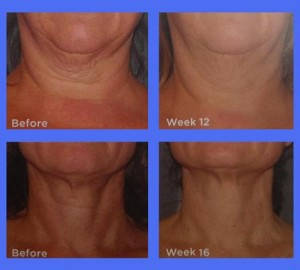 final neck cream pic